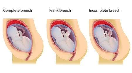 Acupuncture for Turning a Breech Baby